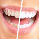 luma-smile-aparat-za-poliranje-i-izbeljivanje-zuba-3