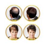 revolumen-hair-vlakna-za-proredjenu-kosu-6